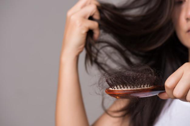 hair loss winter